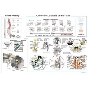 Common Disorders Of The Spine Laminated Poster 20