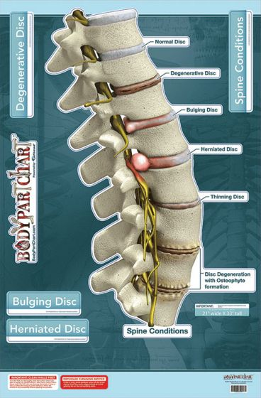 Body Part Spine Conditions-Labeled Wall Decal