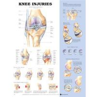 "Knee Injury Chart 20"" X 26"" Styrene Plastic"