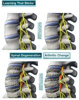 Bodypartchart Spinal Degeneration Series