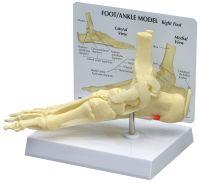 Ankle/Foot Plantar Fasciitis W/ Key Card